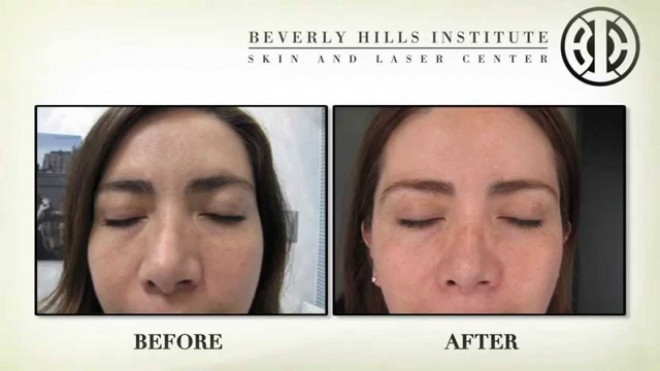 Beverly Hills MD Review: Effective Anti-Aging Skincare ...